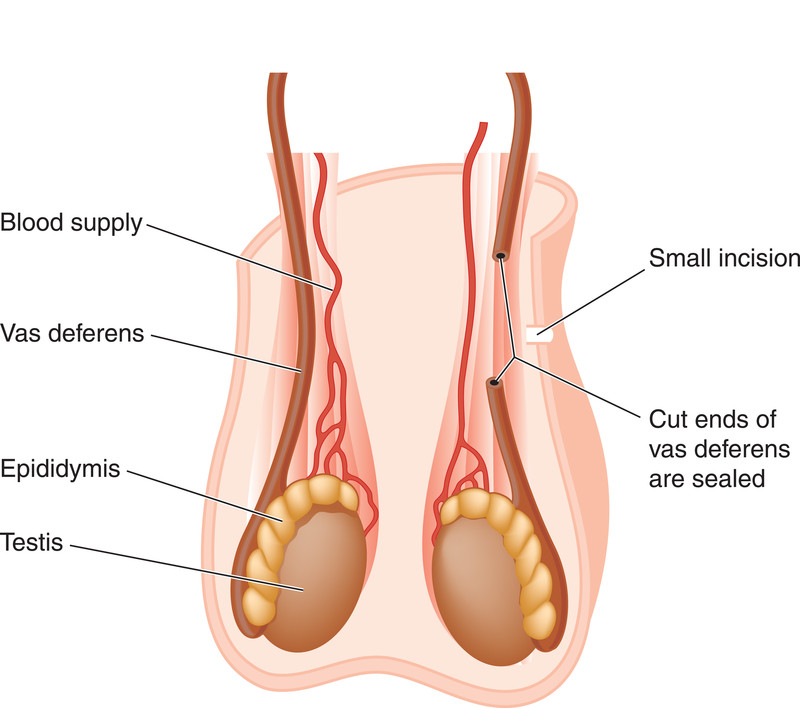 Vasectomy blood in sperm